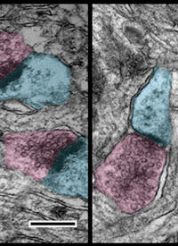 Pre- (pink) and post- (blue) synaptic compartments are smaller than normal in mice lacking TRIO gene, impairing normal brain function and causing disease-associated symptoms. A sample from a mouse with reduced TRIO levels is on the right in this figure.